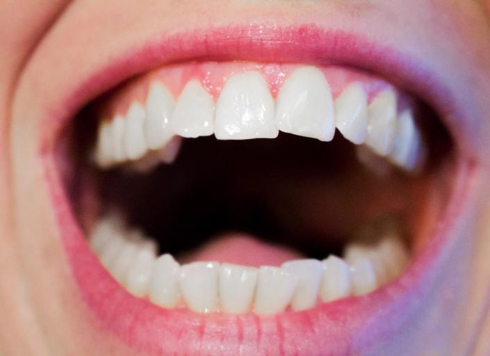 S rovnátky budou vaše zuby vypadat dokonale