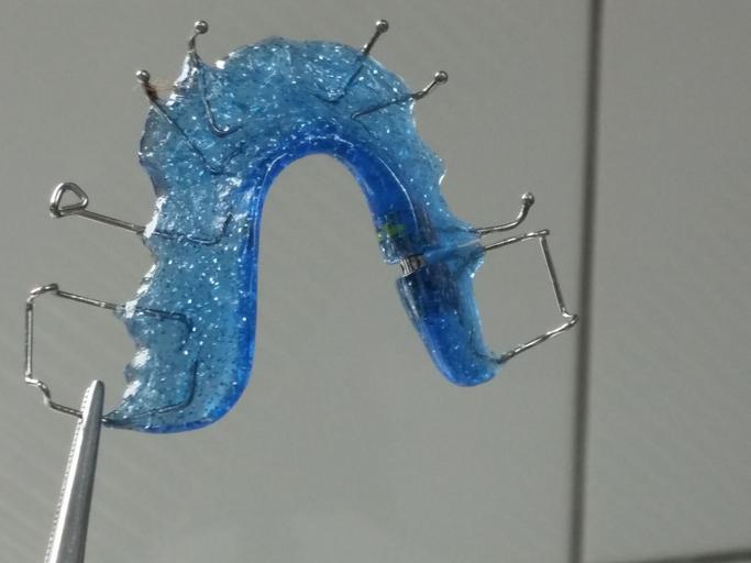 rovnátka na zuby